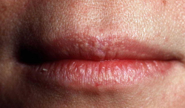 Phương pháp điều trị hạt bã nhờn Fordyce Spot từ thực phẩm