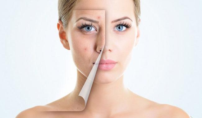 Mẹo hay điều trị sẹo mụn đơn giản và hiệu quả nhất