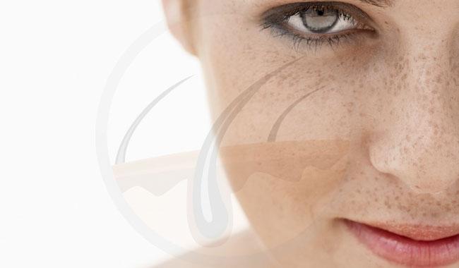 Mẹo hay giúp bạn thoát khỏi tình trạng tăng sắc tố da