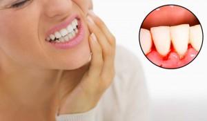 Nguyên nhân và cách điều trị hiệu quả chảy máu chân răng