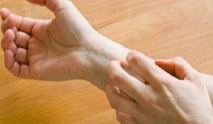 Cách chữa nghẻ ngứa đơn giản và hiệu quả nhất ngay tại nhà